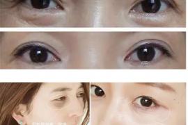 一双迷人的眼睛离不开VIIVA紧致焕活精华眼霜精致的呵护